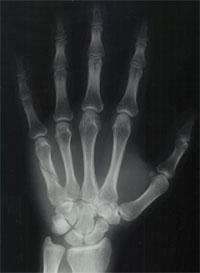brokenhand.jpg